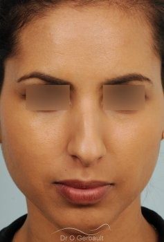 Rhinoplastie ultrasonique Ethnique structurelle vue de face avant