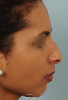 Rhinoplastie ultrasonique Ethnique structurelle vue de profil avant