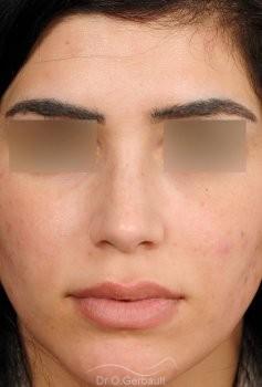 Rhinoplastie ultrasonique ethnique vue de face apres