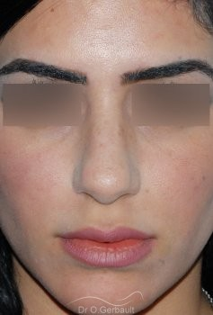 Rhinoplastie ultrasonique ethnique vue de face avant