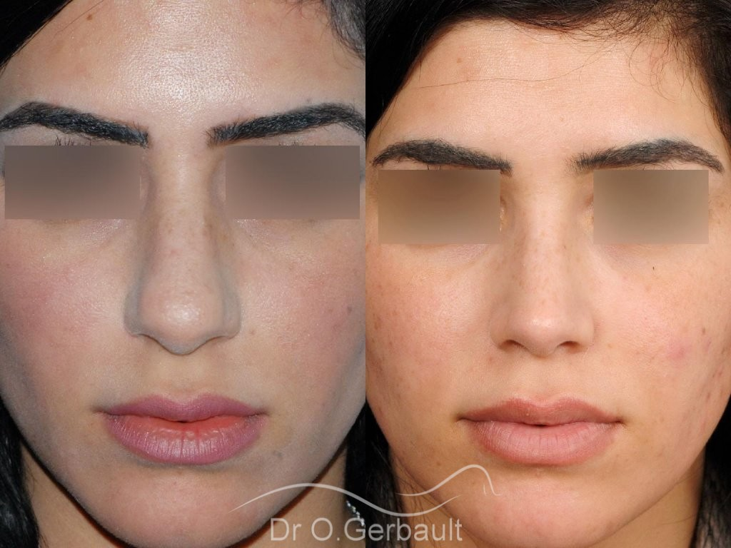 Rhinoplastie ultrasonique ethnique vue de face duo