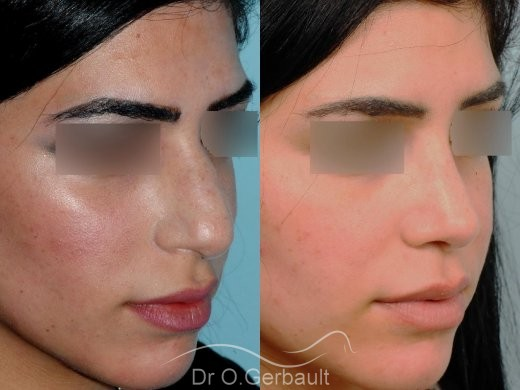 Rhinoplastie ultrasonique ethnique vue de quart duo