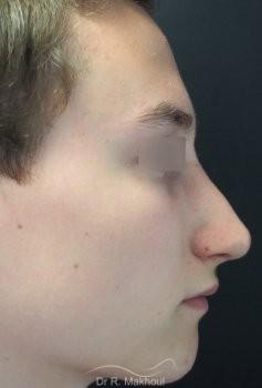 Rhinoplastie ultrasonique vue de profil apres
