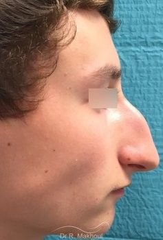 Rhinoplastie ultrasonique vue de profil avant