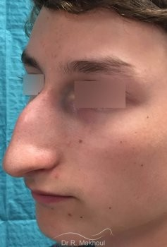Rhinoplastie ultrasonique vue de quart avant
