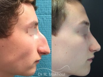 Rhinoplastie ultrasonique vue de profil duo