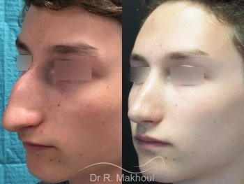 Rhinoplastie ultrasonique vue de quart duo
