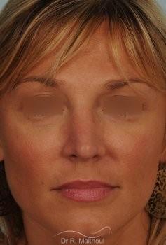 Rhinoplastie ultrasonique primaire vue de face apres