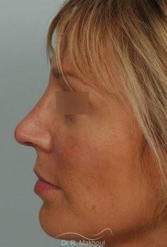 Rhinoplastie ultrasonique primaire vue de profil apres