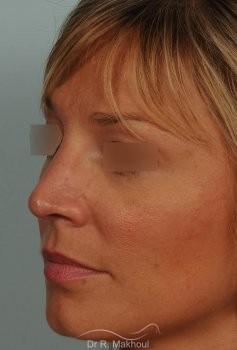 Rhinoplastie ultrasonique primaire vue de quart apres