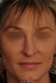 Rhinoplastie ultrasonique primaire vue de face avant