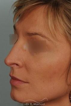 Rhinoplastie ultrasonique primaire vue de quart avant