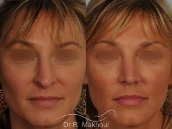 Rhinoplastie ultrasonique primaire vue de face duo