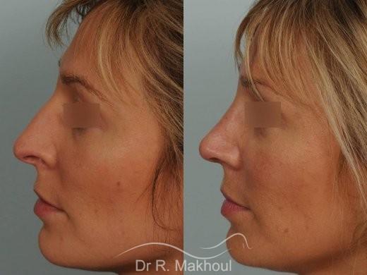 Rhinoplastie ultrasonique primaire vue de profil duo