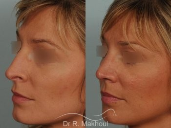 Rhinoplastie ultrasonique primaire vue de quart duo