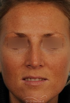 Rhinoplastie ultrasonique Paris - Correction de la bosse du nez,  par le Dr Gerbault vue de face apres