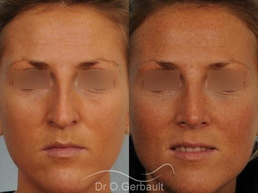 Rhinoplastie ultrasonique Paris - Correction de la bosse du nez,  par le Dr Gerbault vue de face avant-apres