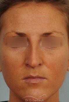 Rhinoplastie ultrasonique Paris - Correction de la bosse du nez,  par le Dr Gerbault vue de face avant