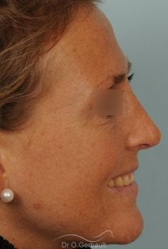 Rhinoplastie ultrasonique Paris - Correction de la bosse du nez,  par le Dr Gerbault vue de profil apres