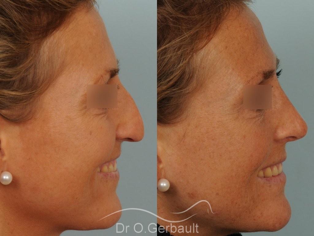 Rhinoplastie ultrasonique Paris - Correction de la bosse du nez,  par le Dr Gerbault vue de profil avant-apres