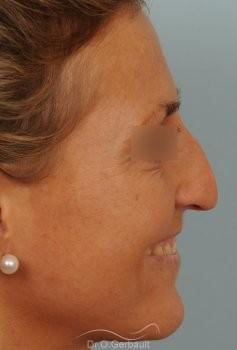 Rhinoplastie ultrasonique Paris - Correction de la bosse du nez,  par le Dr Gerbault vue de profil avant