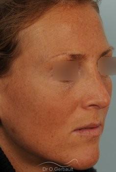 Rhinoplastie ultrasonique Paris - Correction de la bosse du nez,  par le Dr Gerbault vue de quart apres