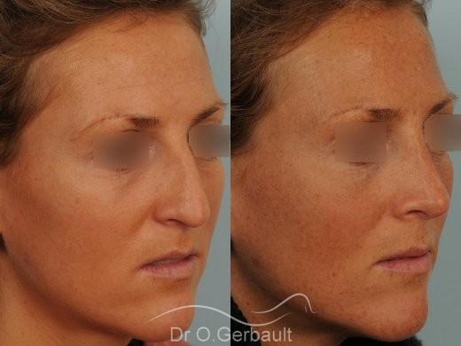 Rhinoplastie ultrasonique Paris - Correction de la bosse du nez,  par le Dr Gerbault vue de quart avant-apres