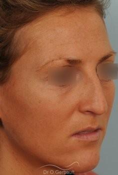 Rhinoplastie ultrasonique Paris - Correction de la bosse du nez,  par le Dr Gerbault vue de quart avant