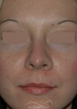 Rhinoplasty with thin skin vue de face apres