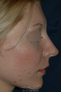 Rhinoplasty with thin skin vue de profil apres