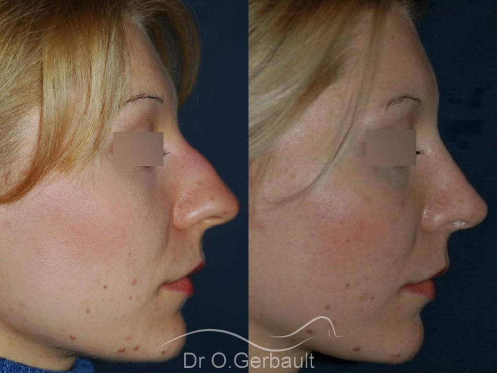 Rhinoplasty with thin skin vue de profil avant-apres