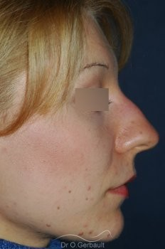 Rhinoplasty with thin skin vue de profil avant