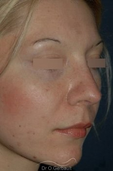 Rhinoplasty with thin skin vue de quart apres