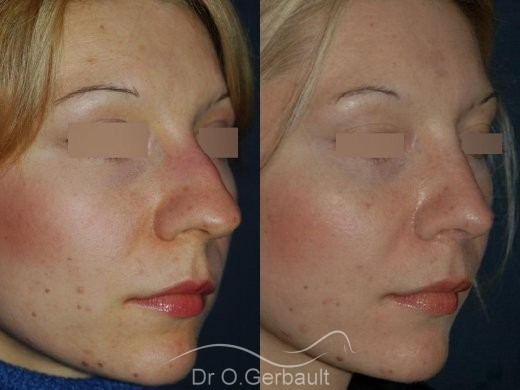Rhinoplasty with thin skin vue de quart avant-apres