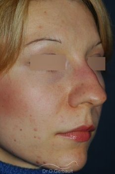 Rhinoplasty with thin skin vue de quart avant