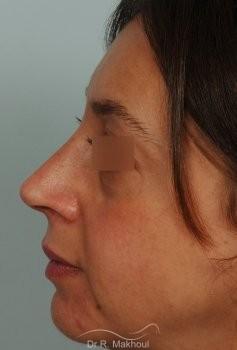 Rhinosculpture sur peau fine avec bosse vue de profil apres