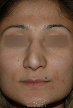 Rhinoseptoplastie ethnique vue de face avant