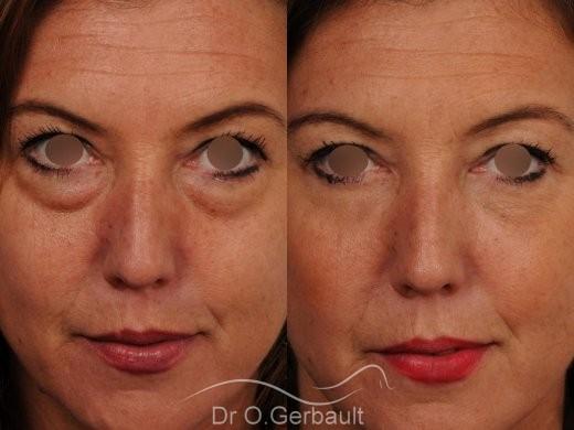 Blépharoplastie inférieure vue de face avant-apres