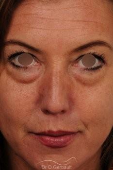 Blépharoplastie inférieure vue de face avant