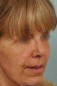 Lifting complet du visage vue de face apres