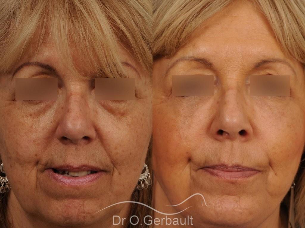 Lifting complet du visage vue de face avant-apres