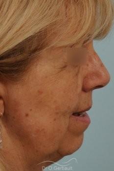 Lifting complet du visage vue de face avant