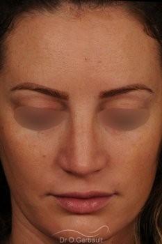 Bosse sur le nez avec pointe large et asymétrique vue de face apres