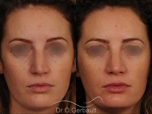 Bosse sur le nez avec pointe large et asymétrique vue de face avant-apres