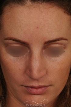 Bosse sur le nez avec pointe large et asymétrique vue de face avant