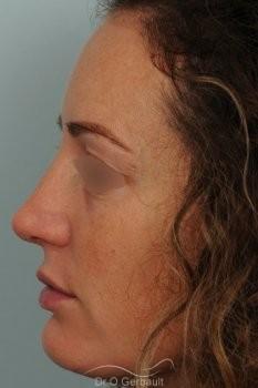 Bosse sur le nez avec pointe large et asymétrique vue de profil apres