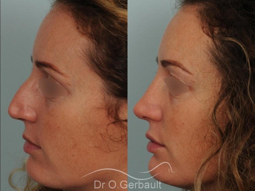 Bosse sur le nez avec pointe large et asymétrique vue de profil avant-apres
