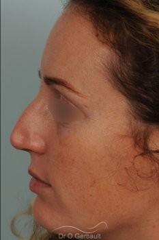 Bosse sur le nez avec pointe large et asymétrique vue de profil avant