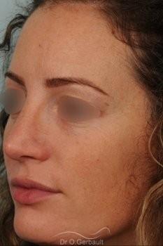 Bosse sur le nez avec pointe large et asymétrique vue de quart apres