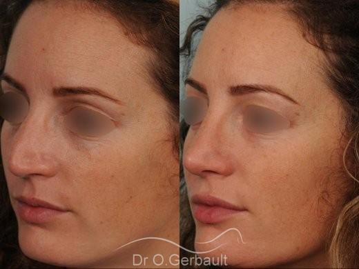 Bosse sur le nez avec pointe large et asymétrique vue de quart avant-apres